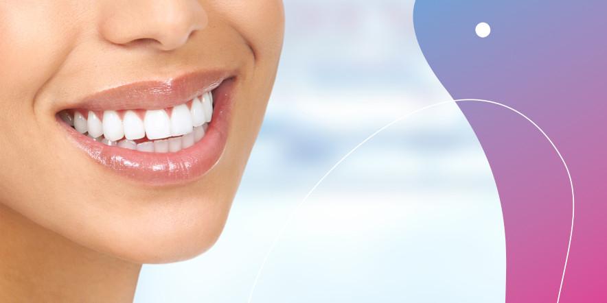 Zhotovení sady pro domácí bělení zubů
